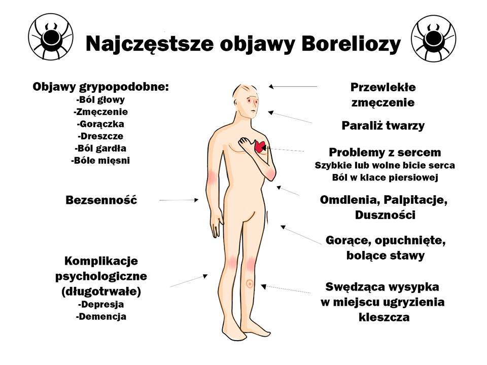 OBJAWY-BORELIOZY-VITA-MEDICA
